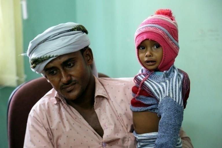 Bloqueo saudita condena a Yemen a una agonía humanitaria